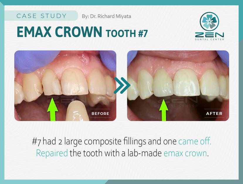 Emax Crown #7_Case Study_Zen Dental Cent