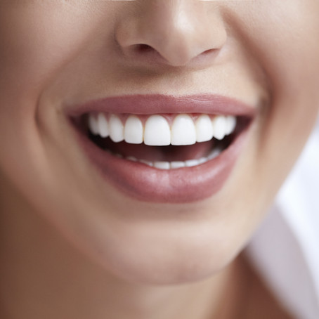 Why Straight Teeth Matter: Explained By Your Waco, TX Cosmetic & General Dentist