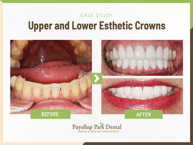 Upper and Lower Esthetic Crowns