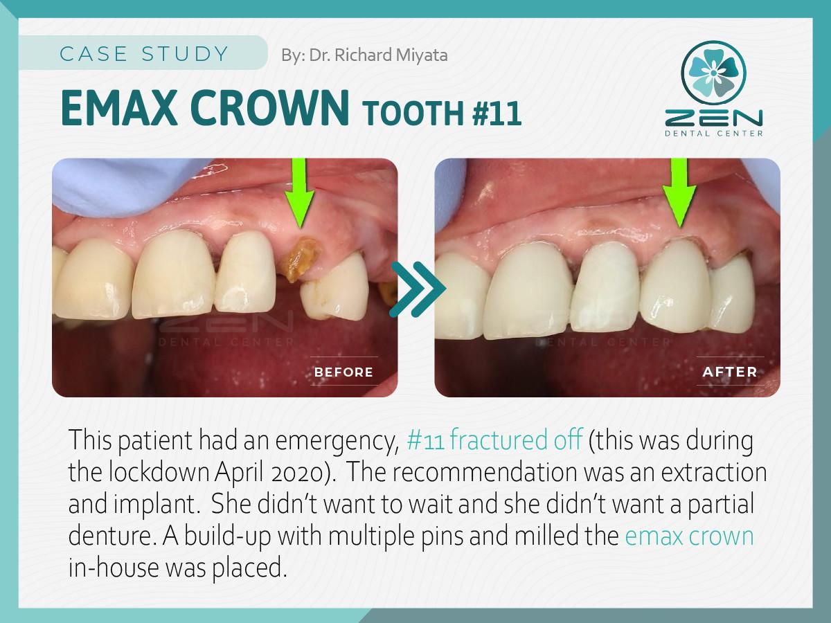 Emergency Emax Crown #11_Case Study_Zen