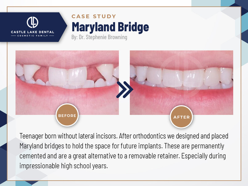 Maryland Bridge