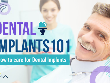 Dental Implant Care 101 | GMedia Digital Marketing in Dallas, TX