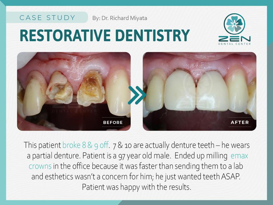 Restorative Dentistry_Case Study_Zen Den