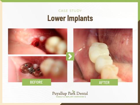Lower Implants.