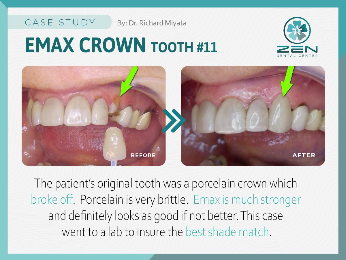 Emax Crown #11_Case Study_Zen Dental Cen