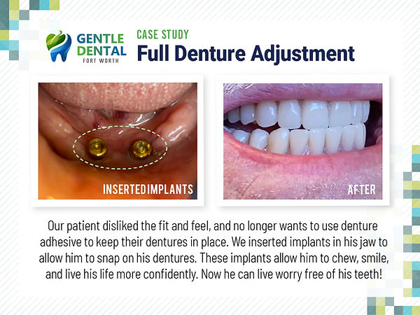 Gentle Dental_Full Denture Adjustment_Ca