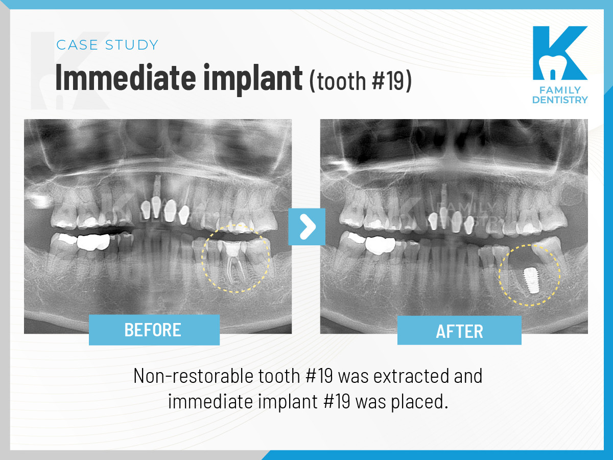 Immediate Dental Implant (tooth #19)