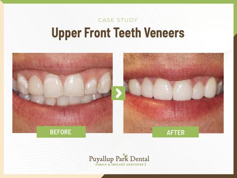 Upper Front Teeth Veneers
