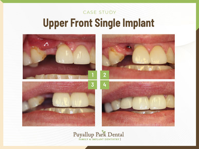 Upper Front Single Implant