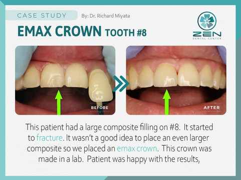 Emax Crown #8_Case Study_Zen Dental Cent