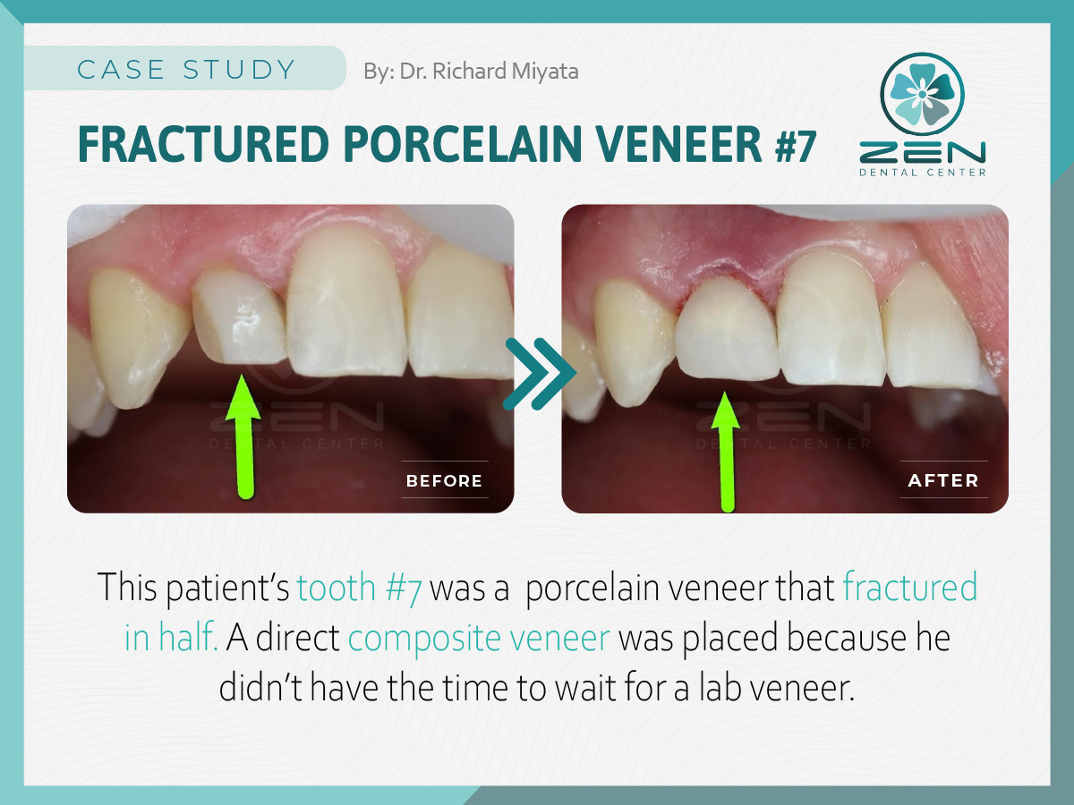 Fractured Porcelain Veneer #7 _Case Stud