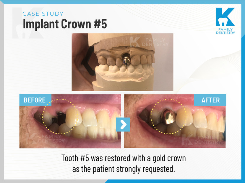 Implant Crown Tooth #5