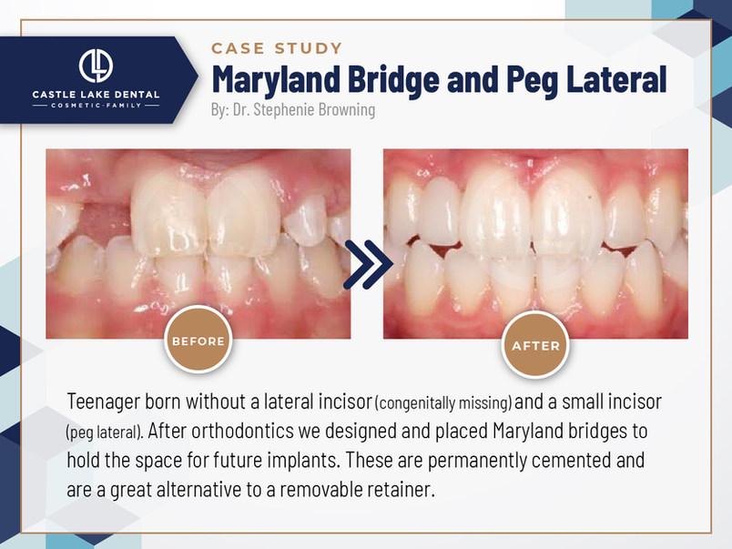Maryland Bridge and Peg Lateral