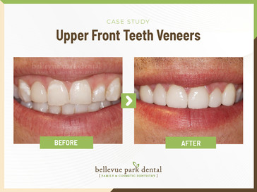 Upper Front Teeth Veneers