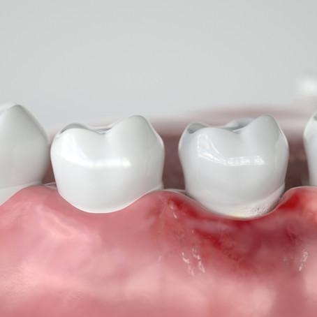 Healing Gum Disease; General Dentist in Waco, TX Describes Treatment Options