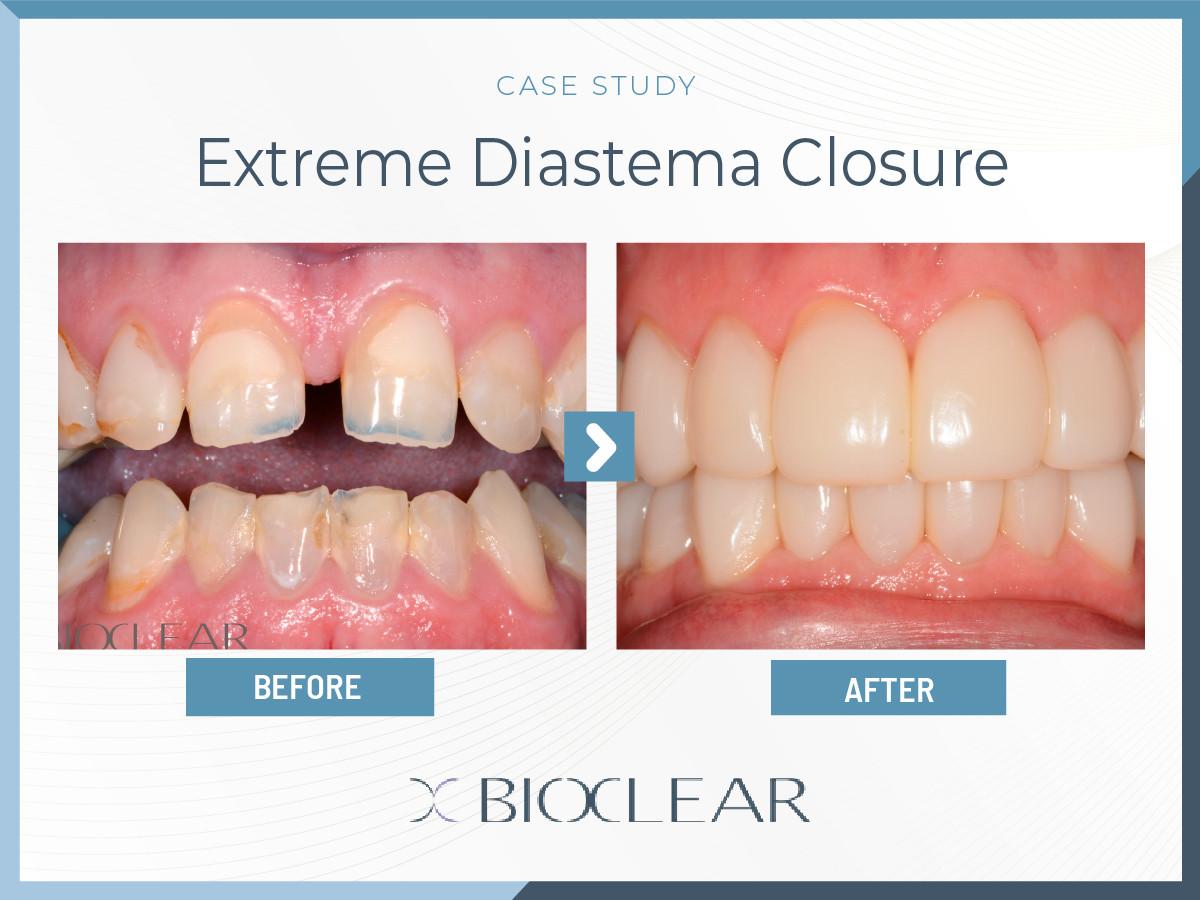 Extreme Diastema Closure