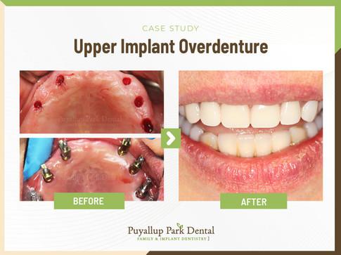 PUpper Implant Overdenture