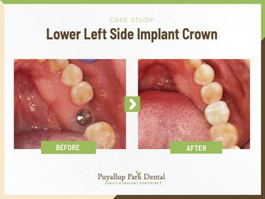 Lower Left Side Implant Crown