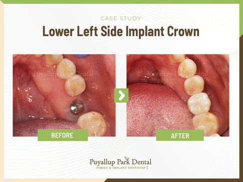 Lower Left Side Implant Crown