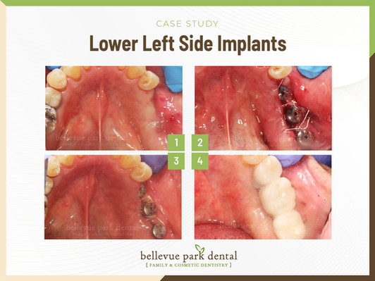 Lower Left Side Implants