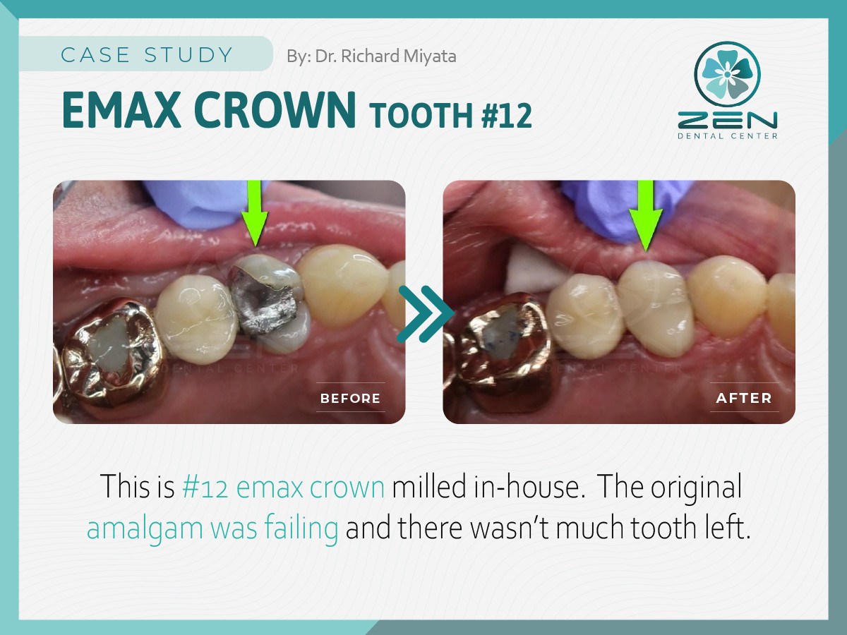 Emax Crown #12_Case Study_Zen Dental Cen