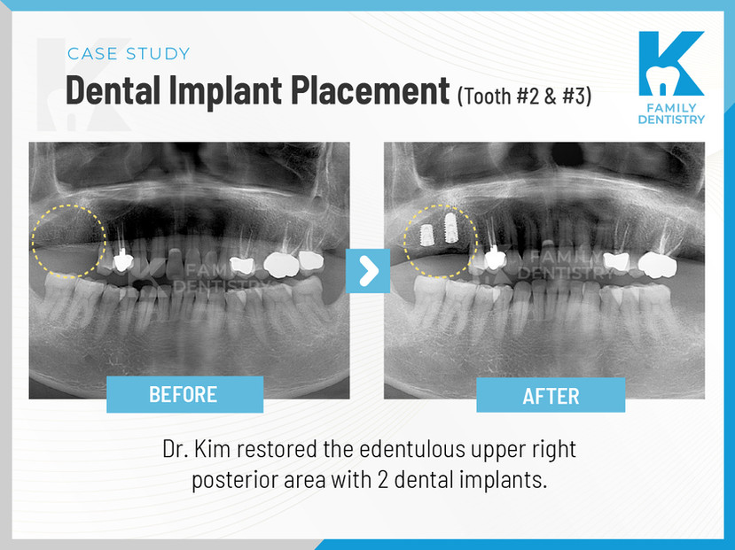 Dental Implant Placement tooth #2 and #3