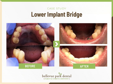 Lower Implant Bridge