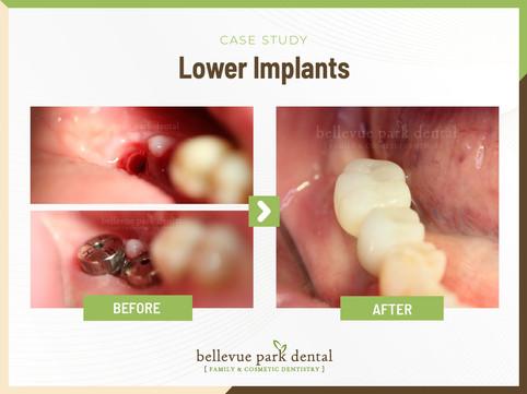 Lower Implants.jpg
