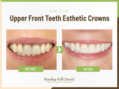 Upper Front Teetth Esthetic Crowns