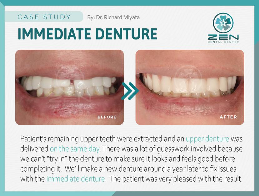 Immediate Denture_Case Study_Zen Dental