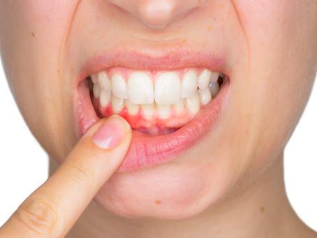 Healing Gum Disease; General Dentist in Lewisville & Carrollton,TX Describes Treatment Options