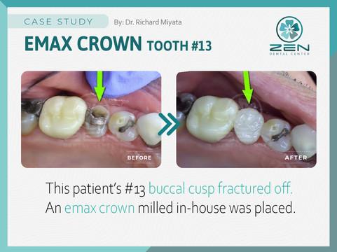 Emax Crown #13_Case Study_Zen Dental Cen