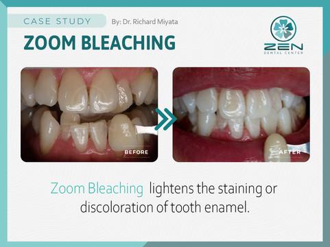 Zoom Bleaching _Case Study_Zen Dental Ce