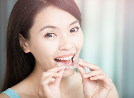 Renton, Washington Patients Ask: How Do Invisible Aligners Work? Cosmetic & General Dentist Answers