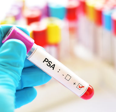 Blood sample positive with PSA (Prostate