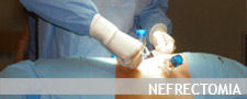 Nefrectomia-paolo-parma.jpg