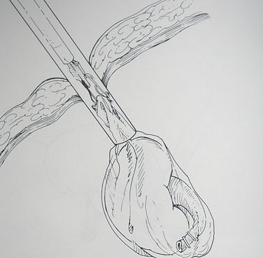 Nefrectomia-radicale-laparoscopica-radic