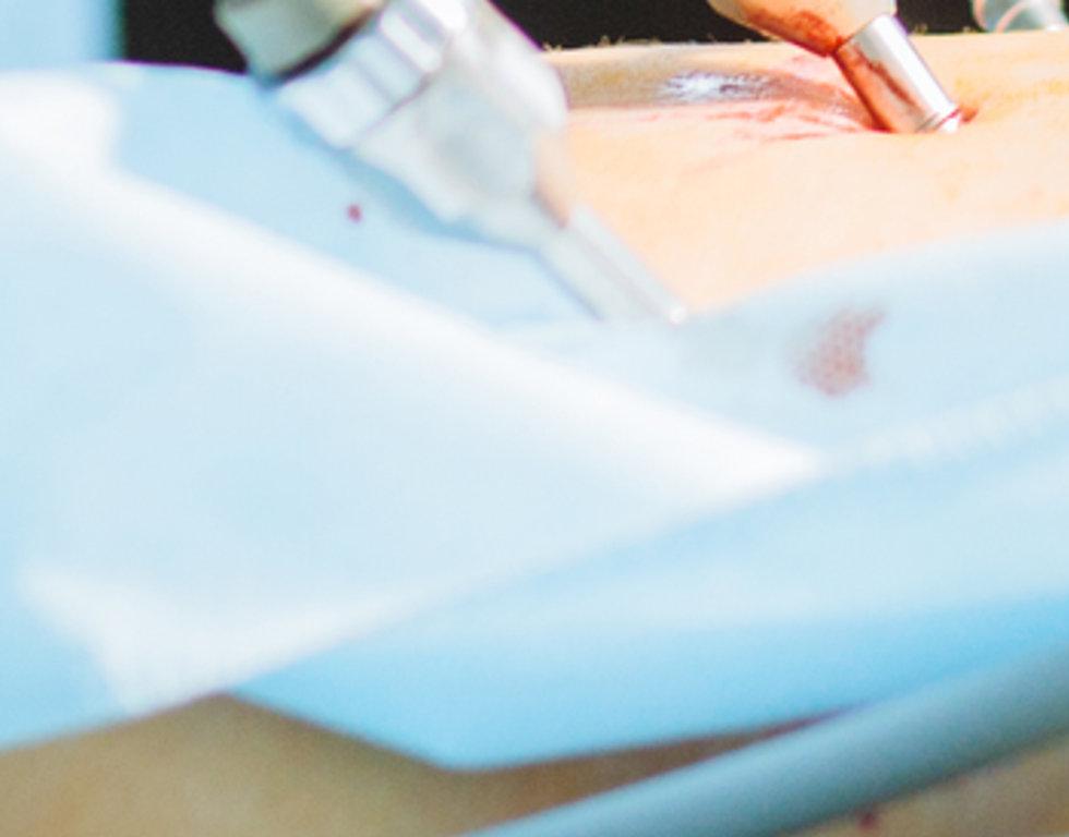 Nefrecetomia laparoscopica paolo parma