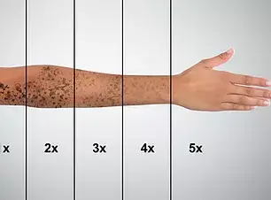 Laser Tattoo Removal On Woman's Hand Aga