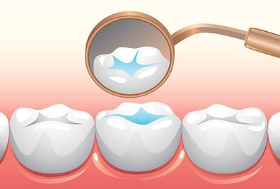 Dental sealant in Norwalk CT.jpg