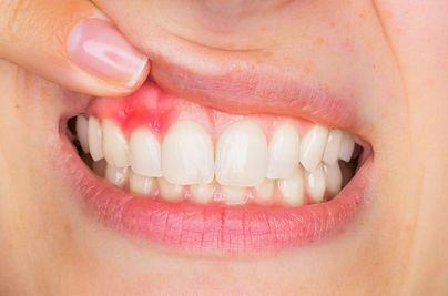 gum disease.jpg