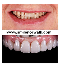 Veneers in Norwalk CT before and after.j