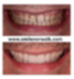 Veneers in Norwalk CT.jpg