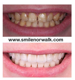Dental Veneers in Norwalk CT.jpg