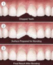 tooth-bonding-norwalk-ct.jpg