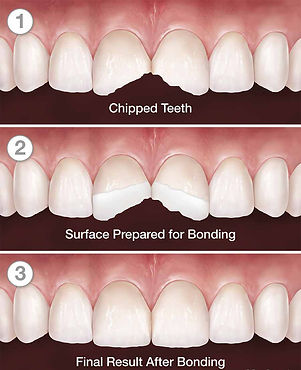 tooth-bonding-norwalk-ct.jpg