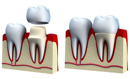 dental_crown_procedure in Norwalk CT.jpg