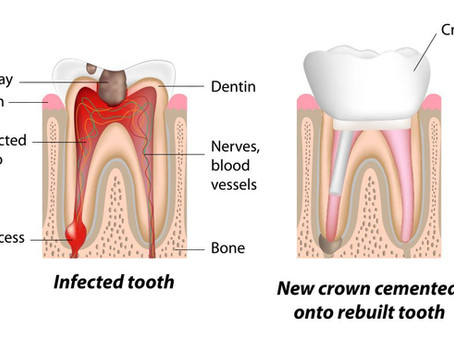 Why is a Dental Crown important after Root Canal Treatment?