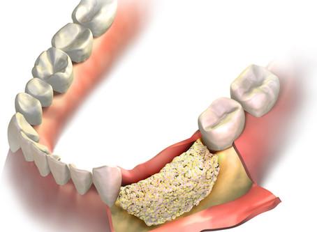 Implant Placement & Bone Block Reconstruction
