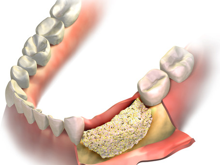 Implant Placement & Bone Block Reconstruction